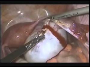 эндометриоидная киста ячника