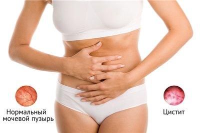 гомеопатия от паразитов в организме человека отзывы