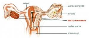 Склерокистоз яичников