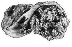 Папиллярная кистома яичника