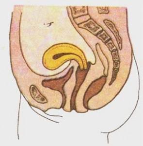 Гиперантефлексия матки