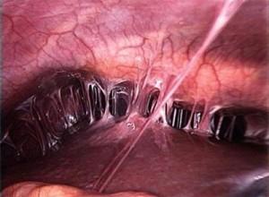 Особенности протекания и лечения спаечной болезни