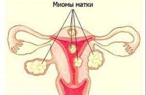 Фибромиома матки - статистика заболевания