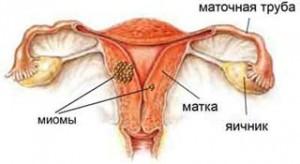 Миома матки - заболевание с благоприятным прогнозом