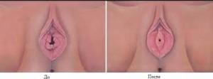Восстановление девственной плевы. Кратковременная гименопластика