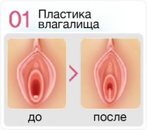 Уменьшение влагалища хирургическим путем