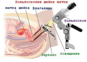 Кольпоскопия и беременность