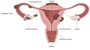 Эндометриоз полиэтиологическое заболевание