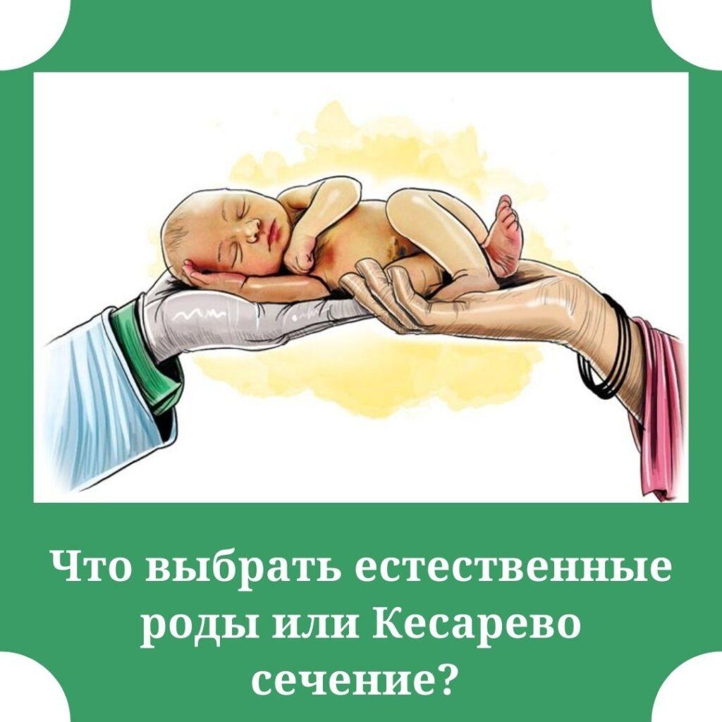 роды или Кесарево сечение