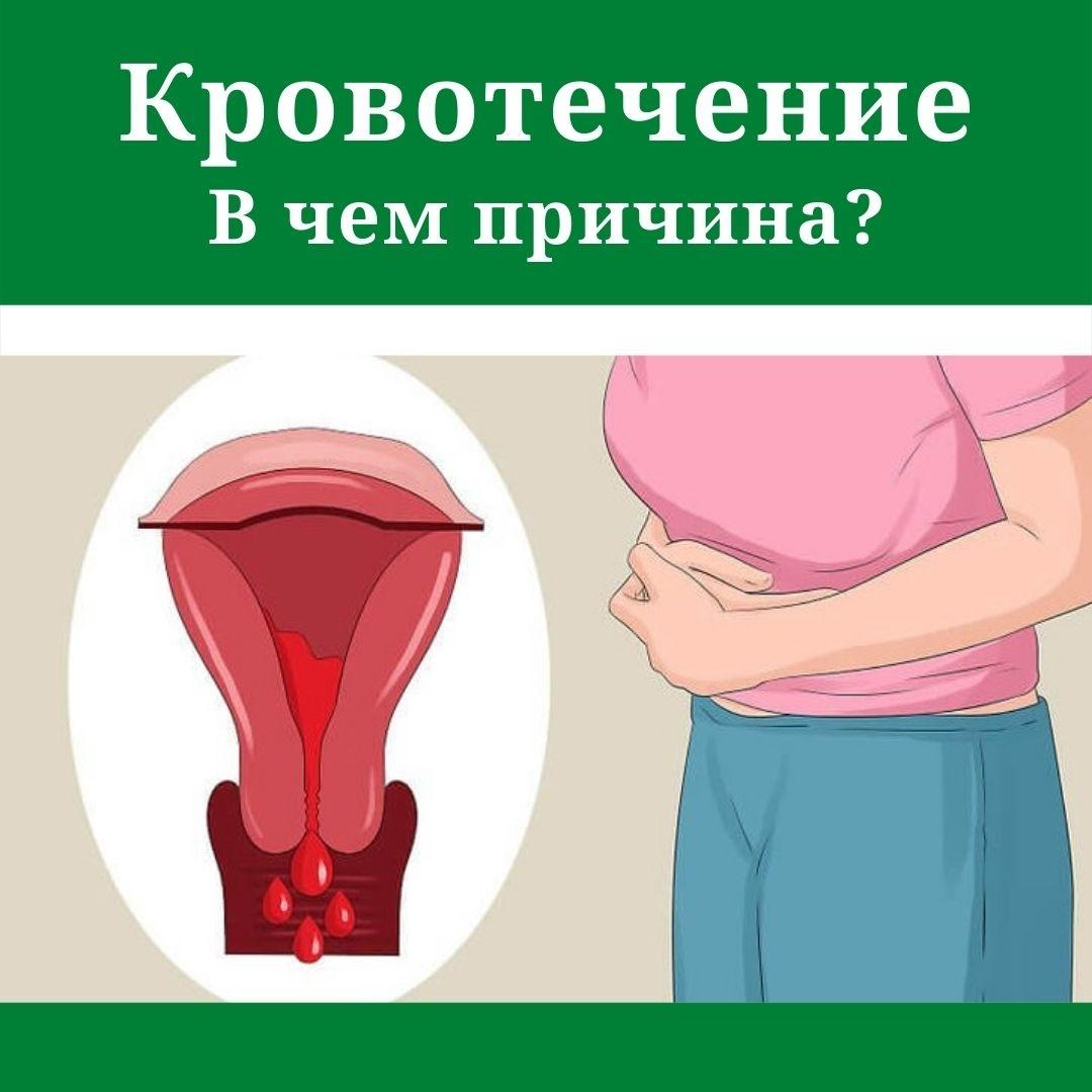 обильные менструальные кровотечения